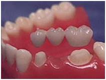 Pembuatan Gigi Tiruan
