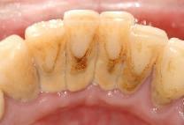 Pengertian Karang Gigi Calculus Pembersihan Karang Gigi Yogyakarta