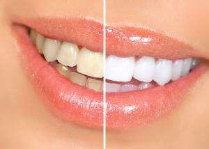 tooth whitening bleaching