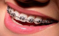 Contoh pemasangan kawat gigi