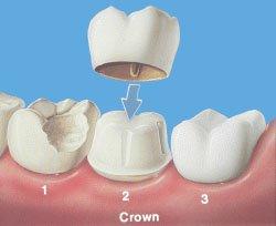 Mahkota tiruan (dental crown)
