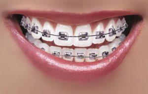 Gigi dengan Kawat Gigi