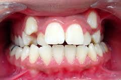 Contoh Gigi anak yang tumbuh tidak beraturan/desakan