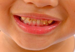 Karies gigi anak