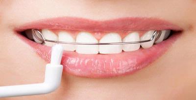 Jangan Pakai Kawat Gigi karena Alasan Gaya