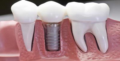 Syarat dan Keamanan Pasang Implan Gigi