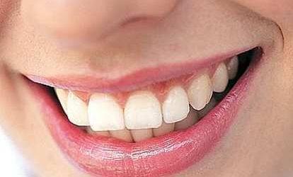 Kenali, Ini Berbagai Penyebab Warna Gigi Bisa Berubah
