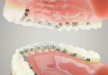 Pengguna Kawat Gigi Rentan Gigi Sensitif