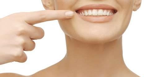 Gigi Bisa Berwarna Kuning Kehijauan karena Tertutup Karang Gigi