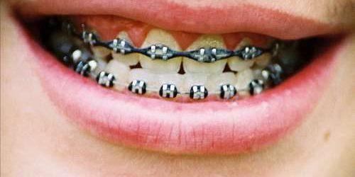 Mau Pakai Behel Padahal Susunan Gigi Tak Bermasalah? Ini Kata Dokter