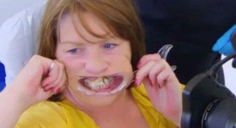 Takut Dokter, Wanita Ini Pasang Gigi Tanggalnya Kembali dengan Lem