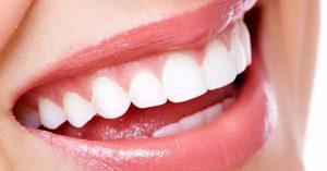 Memutihkan gigi dengan bleaching