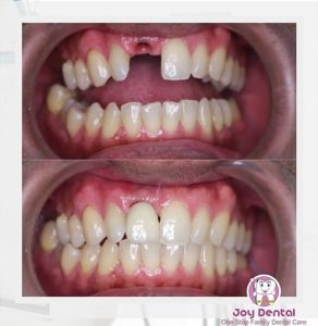 Hasil implan Joy Dental Jogja