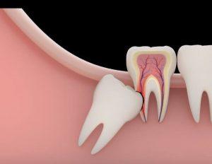 kenapa gigi bungsu harus dicabut