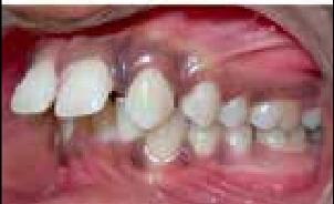 Bernafas Lewat Mulut Sebabkan Gigi Jadi Berantakan
