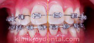 behel konvensional logam joy dental jogja