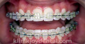 behel konvensional transparan joy dental jogja