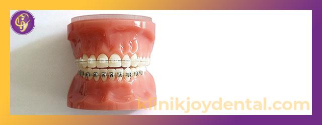 Pasang Behel Gigi di Joy Dental, Sakit Gak Sih?
